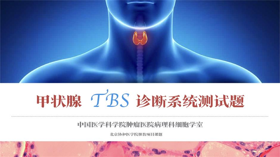 甲状腺TBS诊断系统测试,等你来战!